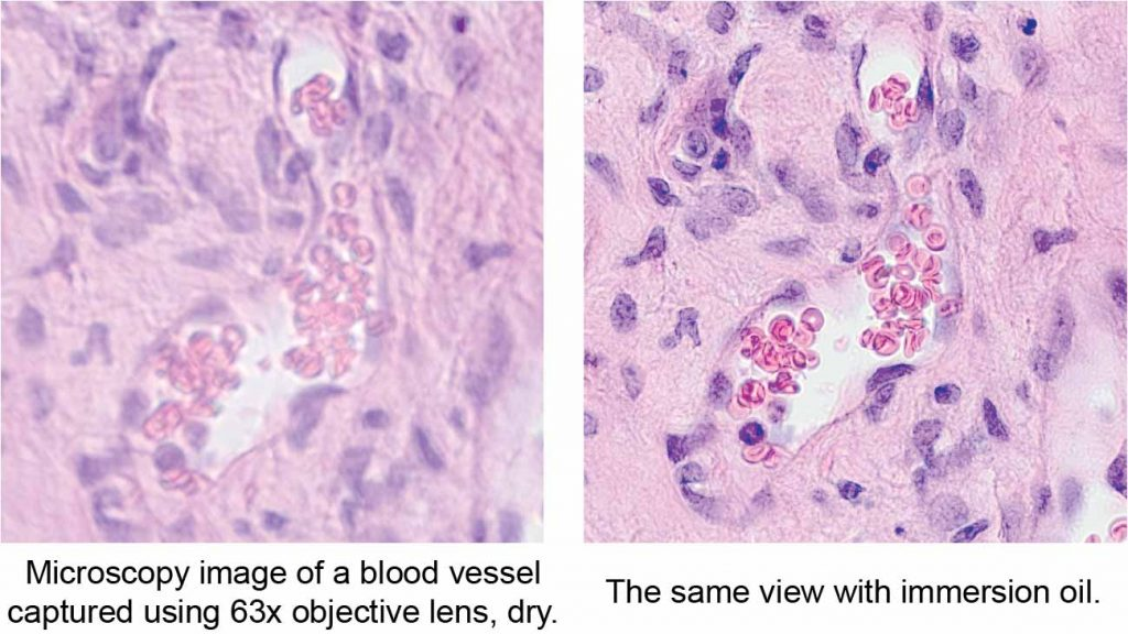 Microscopy image of a blood vessel shows the difference between dry lens and using microscope immersion oil.