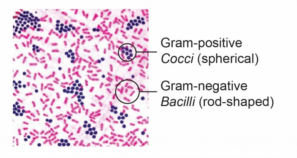 gram stain gram positive and negative bacteria