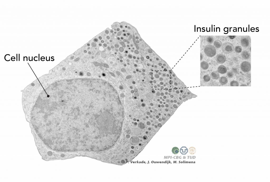 Electron microscopy image of the pancreatic beta cells release insulin
