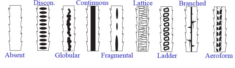 different-medullary-patterns-of-mammalian-hair
