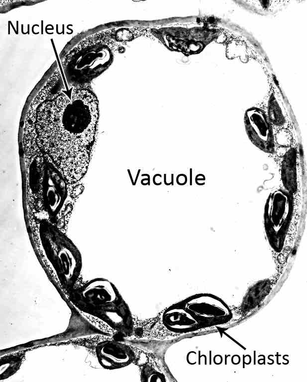 electron-micrography-of-Vacuole