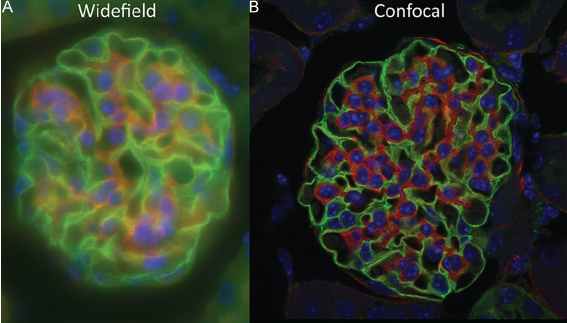images-from-widefield-vs-confocal