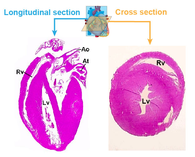 cross-section-longitudinal-section-heart