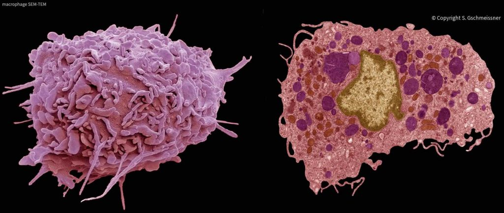 electron-micrography-macrophages