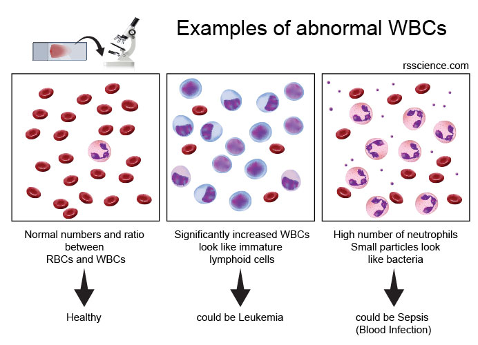 examples-of-abnormal-WBC